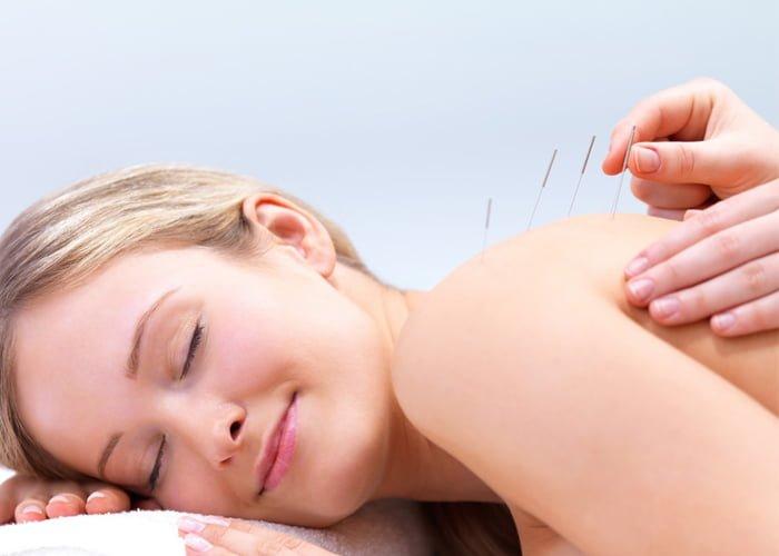 Como montar uma clínica de acupuntura